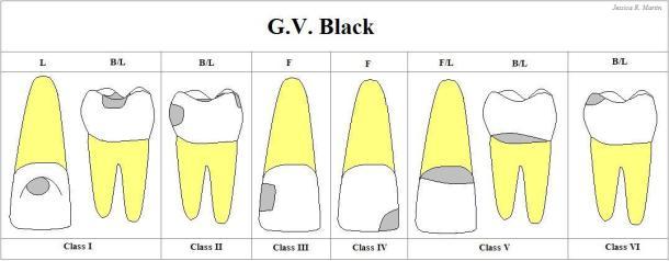 GV-BLACK-1