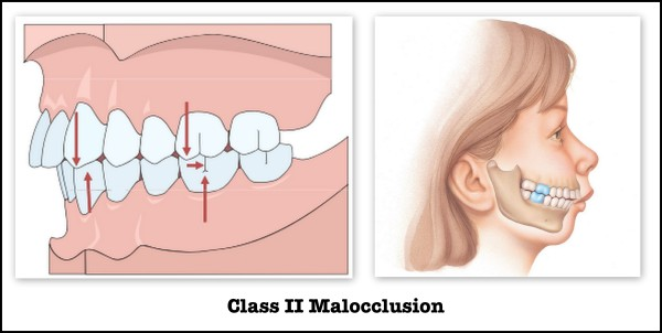 class II maloccusion