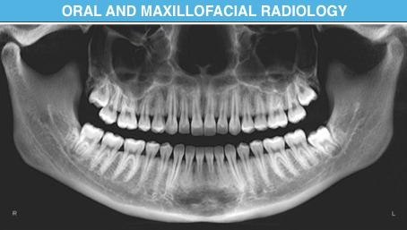Dental Specialities | DENTODONTICS