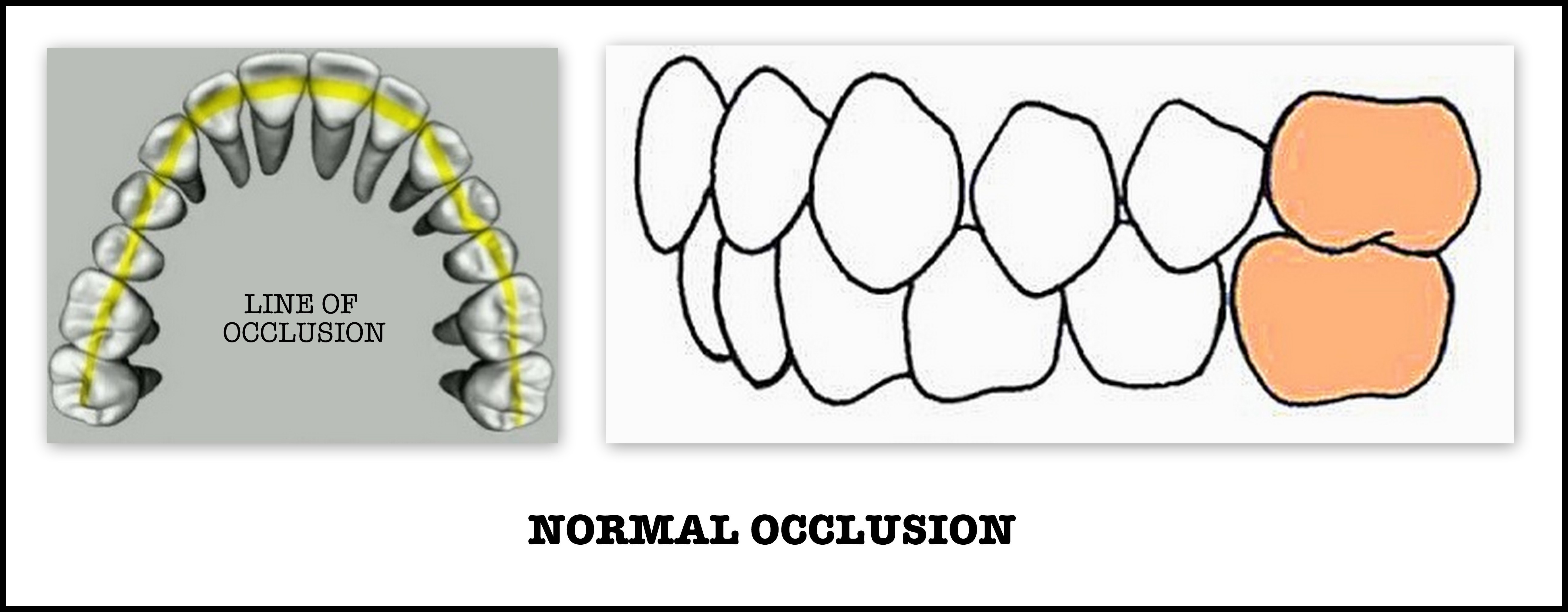 ANGLE'S CLASSIFICATION OF MALOCCLUSION | DENTODONTICS