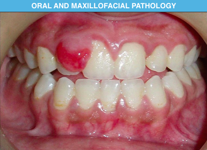 oral and maxillofacial pathology pdf