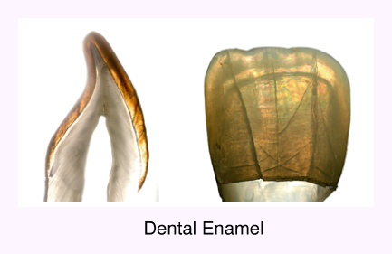 dental enamel