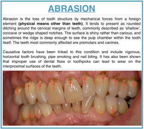 tooth wear dentodontics