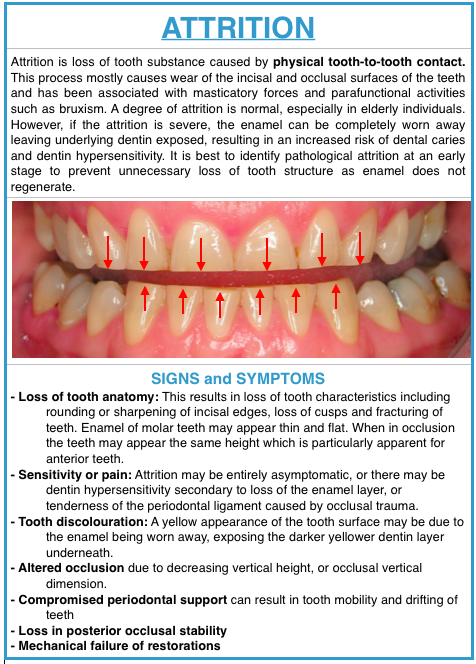 dental attrition